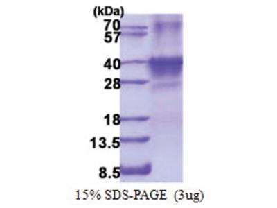 SIX1 (1-284, His-tag)