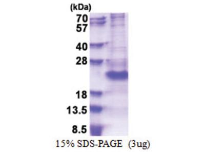 CD162 / PSGL1 (42-121, His-tag)