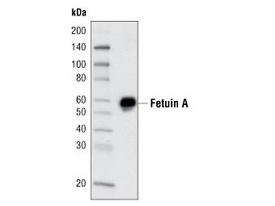 Fetuin A (F180) Antibody