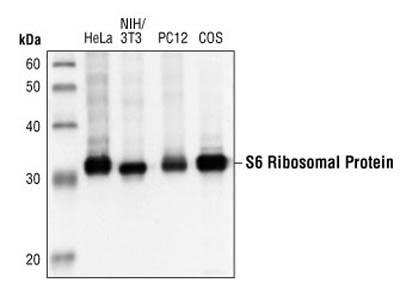 Total s6 Ribosomal Protein