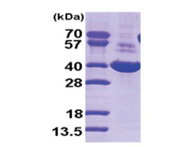 AKR1C1 / DHH1 (1-323, His-tag)