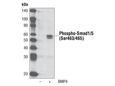 Phospho-Smad1/5 (Ser463/465) (41D10) Rabbit mAb