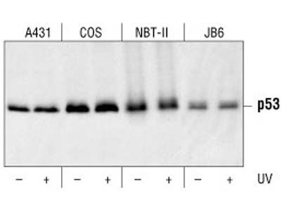 p53 (1C12) Mouse mAb