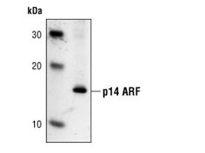 p14 ARF (4C6/4) Mouse mAb