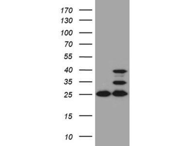 UQCRFS1 mouse monoclonal antibody,clone OTI4H8