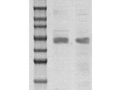 Rabbit anti SOCS-4 Polyclonal Antibody