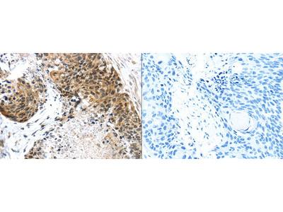 Rabbit Polyclonal Anti-TRIM74 Antibody