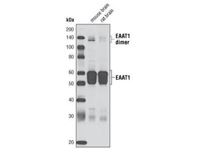 EAAT1 (D20D5) Rabbit mAb
