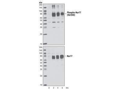 Phospho-Nur77 (Ser351) (D22G5) Rabbit mAb
