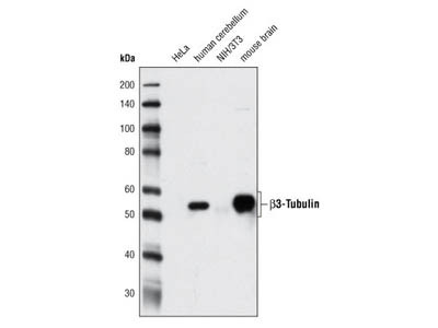 β3-Tubulin (D71G9) XP ® Rabbit mAb