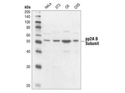 PP2A B Subunit Antibody