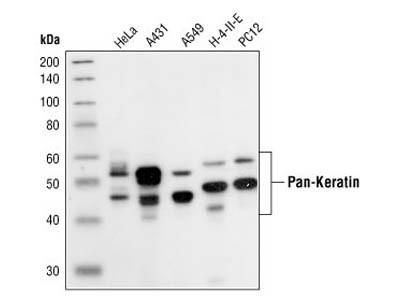 Pan-Keratin (C11) Mouse mAb