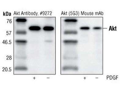 Akt/PKB protein expression analysis via Western blotting