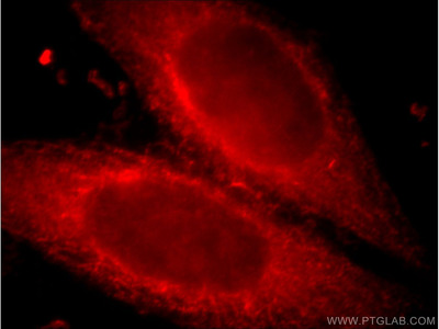 CXCR2 Polyclonal Antibody