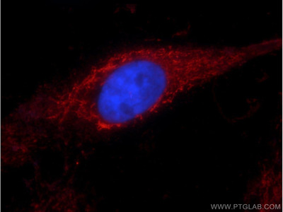 ALDH1A1 antibody - KD/KO Validated (1A10A2)