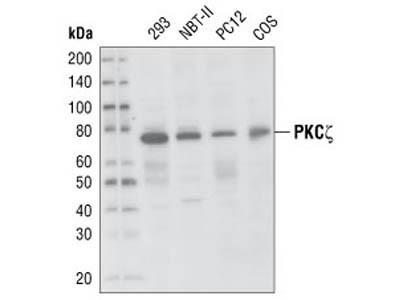PKCζ (C24E6) Rabbit mAb