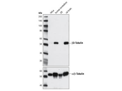 β3-Tubulin (D65A4) XP ® Rabbit mAb