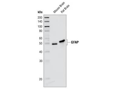 GFAP (GA5) Mouse mAb