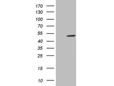 Carrier-free (BSA/glycerol-free) AMACR mouse monoclonal antibody, clone OTI2E3 (formerly 2E3)