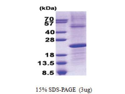 CD179b (38-213, His-tag)