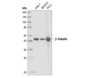 Excellent Antibody for Immunodetection of ß-Tubulin in Mammalian Cells