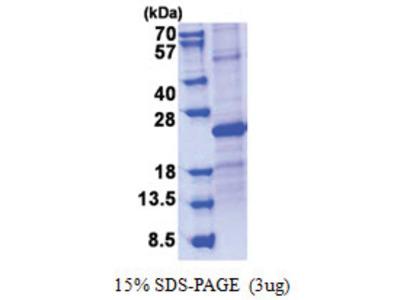 SOSTDC1 / USAG1 (24-206, His-tag)