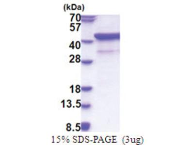 CD172a / SIRPA (27-373, His-tag)