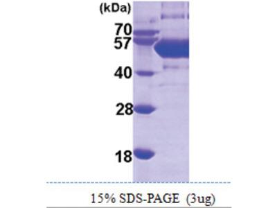 SEPSECS (1-501, His-tag)