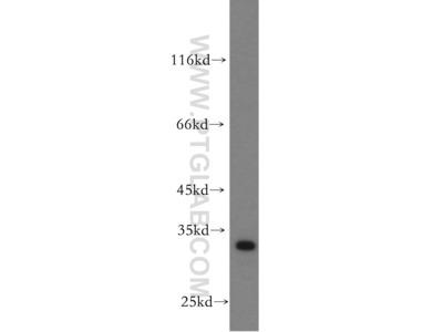 PTPRR Antibody