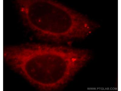 peroxiredoxin 2 antibody