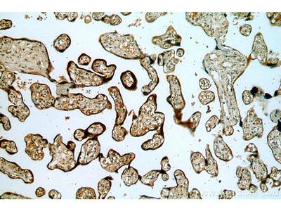 TMC1 Antibody