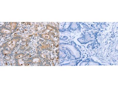 Rabbit Polyclonal Anti-KLK4 Antibody