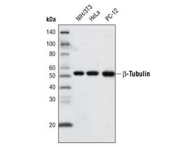 β-Tubulin (9F3) Rabbit mAb (Biotinylated)