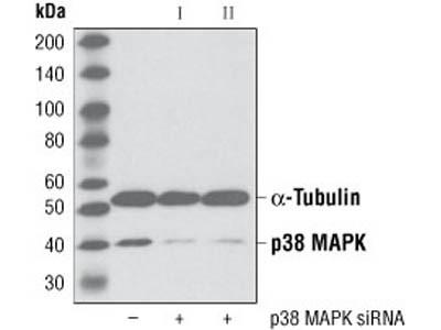 Best p38MAPAK Ab for Immunodetection