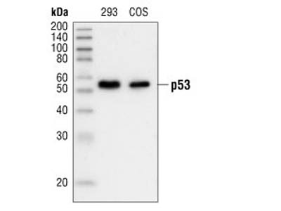 p53 (7F5) Rabbit mAb