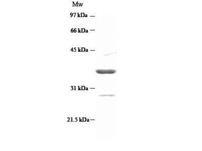 CircuLex Human S100P Low Endotoxin