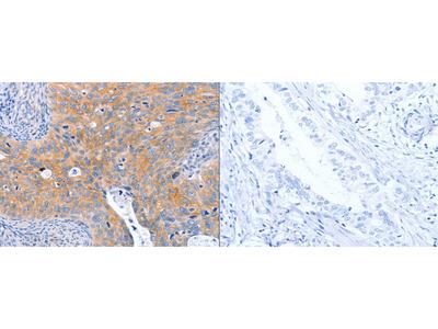 Rabbit Polyclonal Anti-ABO Antibody