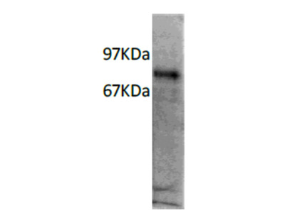 IL7R alpha (IL7R) mouse monoclonal antibody, clone R34-34
