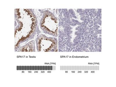 Anti-SPA17 Antibody