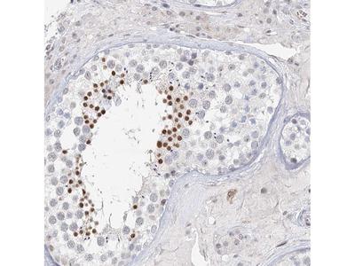 Anti-C6orf222 Antibody