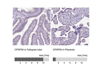 Anti-CFAP54 Antibody