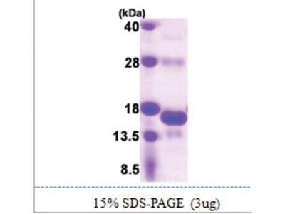SNRNP25 (1-132, His-tag)