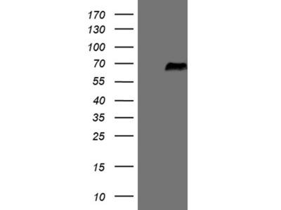 Carrier-free (BSA/glycerol-free) SRPK3 mouse monoclonal antibody, clone OTI6F5