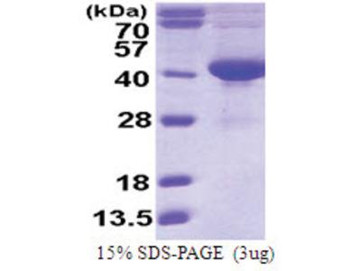 SDSL (1-329, His-tag)