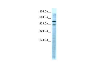 HTR3A antibody - N-terminal region (AVARP13046_P050)