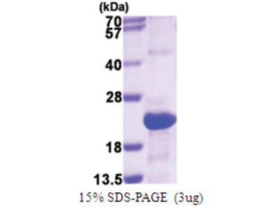 Serglycin / PRG1 (28-158, His-tag)