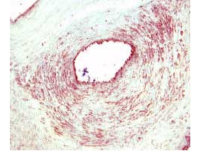 TIE2 (TEK) goat polyclonal antibody