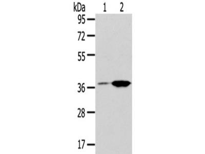 Rabbit Polyclonal Anti-TBXA2R Antibody