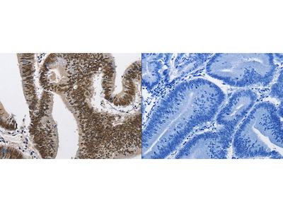 Rabbit Polyclonal Anti-CMTM2 Antibody