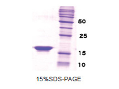 Beta-Synuclein / SCNB